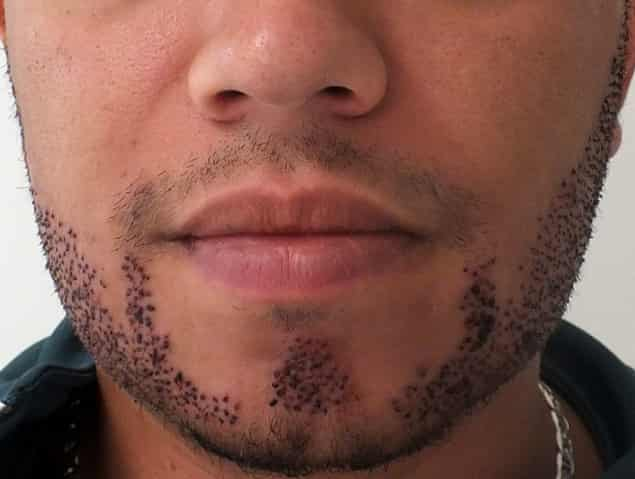 What are beard implantation methods 3